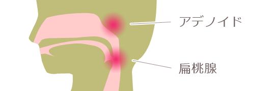扁桃腺とアデノイド
