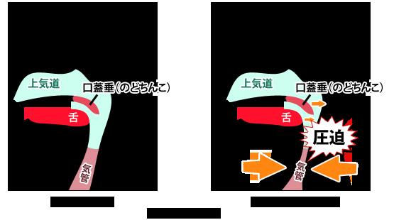 上気道の解説図
